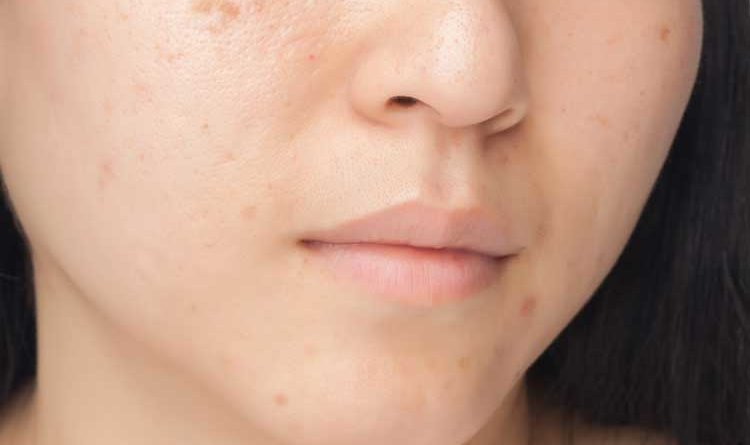 How To Get Rid Of Chickenpox Marks On Face Naturally
