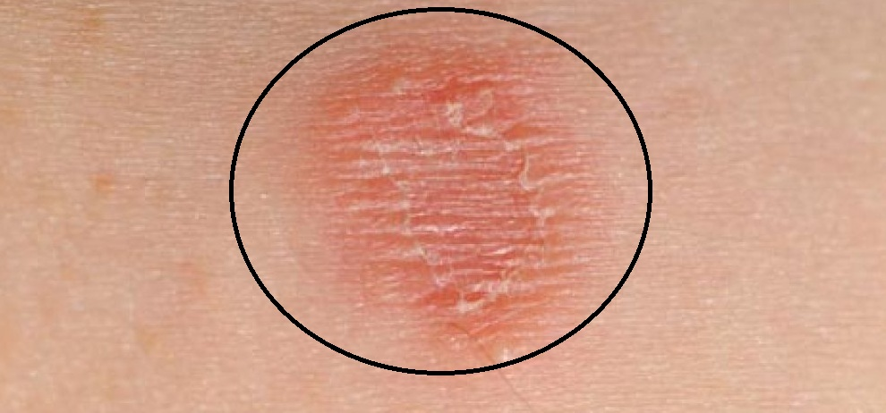 Baking Soda Skin Rashes