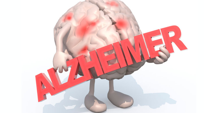 Alzheimer's disease symptoms