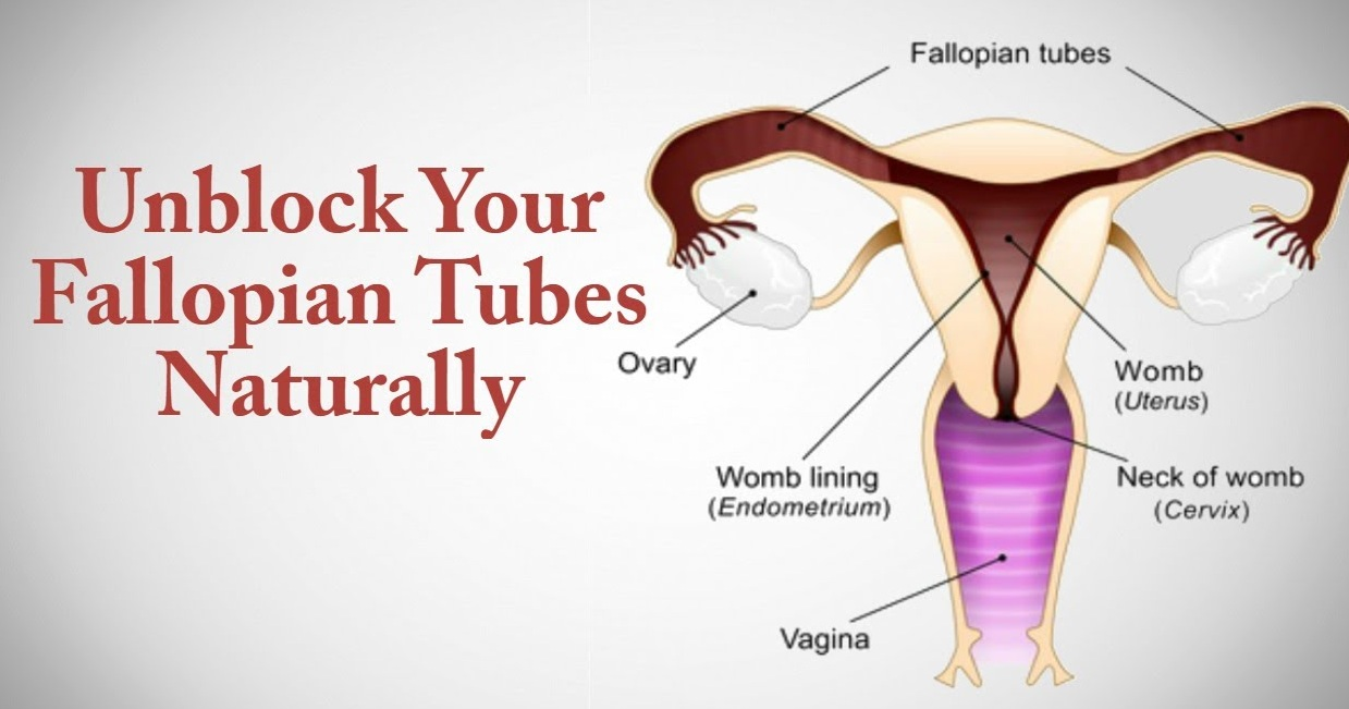 How To Get Rid Of Blocked Fallopian Tubes
