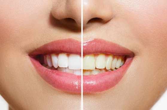 Teeth whitening Tips