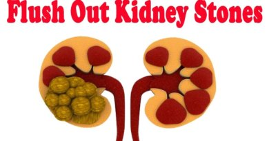 What are Kidney Stones