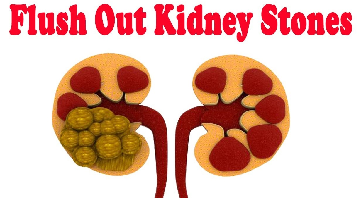 Get Rid Of Kidney Stones Naturally