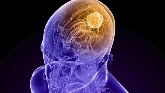 How to Prevent Brain Aneurysm Naturally